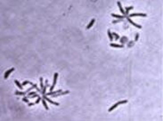 จุลินทรีย์สังเคราะห์แสง