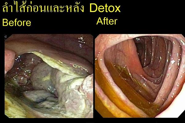 detoxresult
